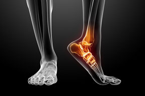 Why see a Podiatrist?